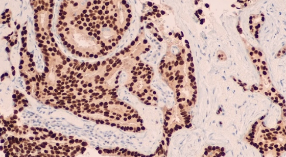 Tips For Solving Problems In Immunohistochemistry (Ihc)